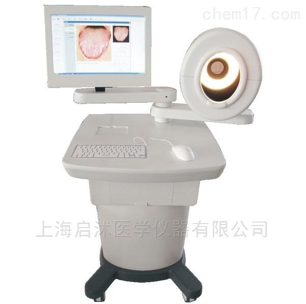 QS/ZY-1A中医舌诊图像分析系统(台车式)