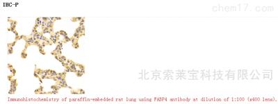 Anti-FABP4 Polyclonal Antibody