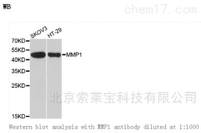 Anti-MMP1 Polyclonal Antibody
