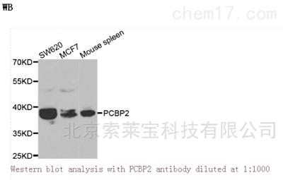 Anti-PCBP2 Polyclonal Antibody