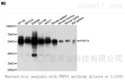Anti-PRPF4 Polyclonal Antibody