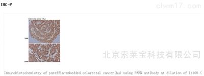 Anti-PARN Polyclonal Antibody