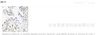 Anti-DDX39B Polyclonal Antibody