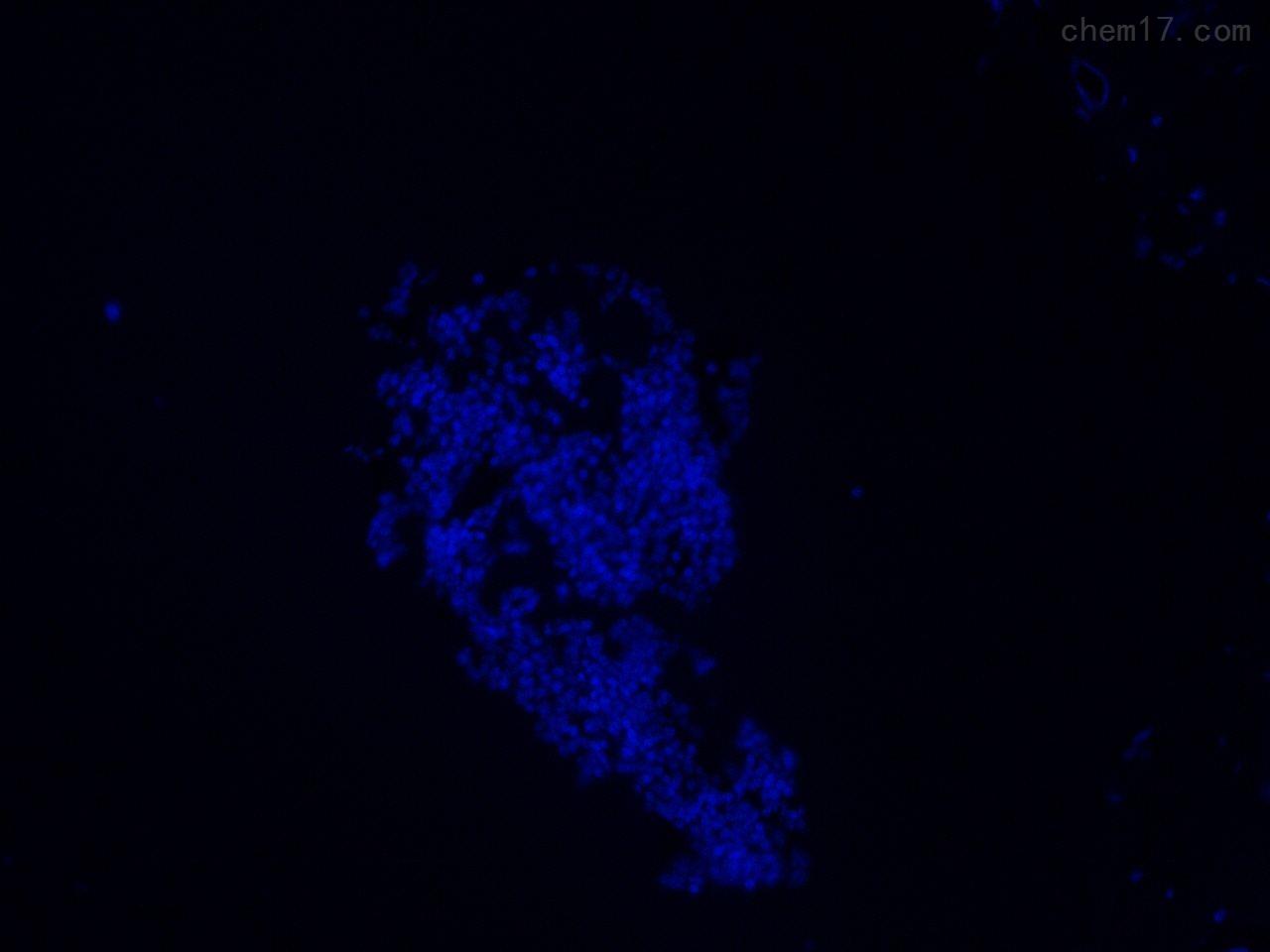 免疫荧光细胞化学病理实验