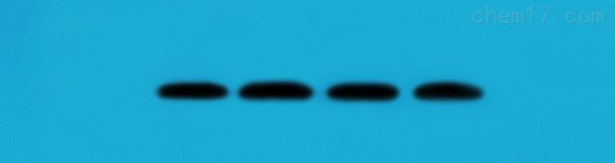 WB蛋白免疫印迹实验技术服务